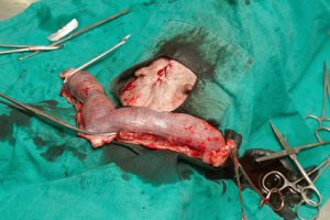 Surgery of pyometra (uterus infection) in the dog